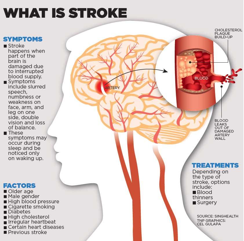 Jual Obat Stroke Surabaya Sidoarjo Penyakit Stroke