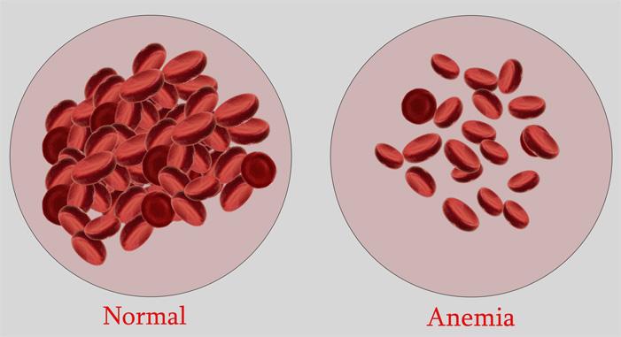 Cara alami mengobati anemia What is anemia