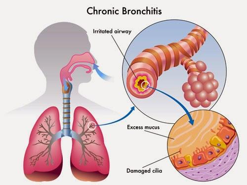 Cara alami mengobati bronkitis obat tradisional bronkitis