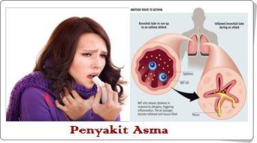 Jual Obat Asma Surabaya Sidoarjo Agen Grosir Obat Asma
