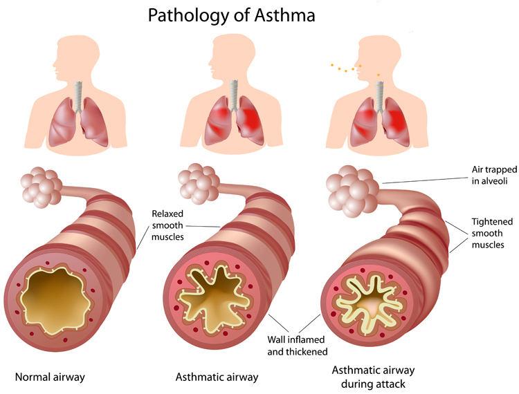 cara alami mengobati asma asthma big