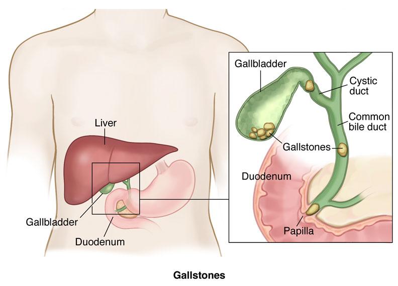 cara alami mengobati batu empedu penyakit gallstones