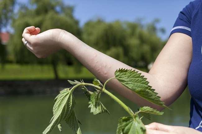 cara alami mengobati biduran kaligata biduran cakcip