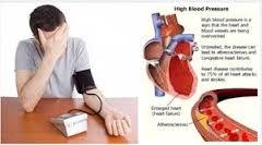 Jual Obat Darah Tinggi surabaya