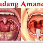 Jual Obat Radang Amandel Surabaya