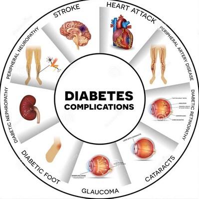Cara Alami Mengobati Diabetes Tipe 2 Komplikasi